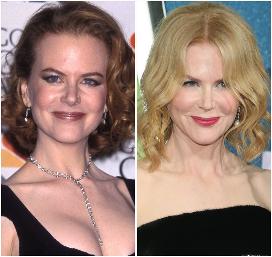 Nicole Kidman Before and After